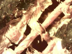 Examen sous microscope électronique